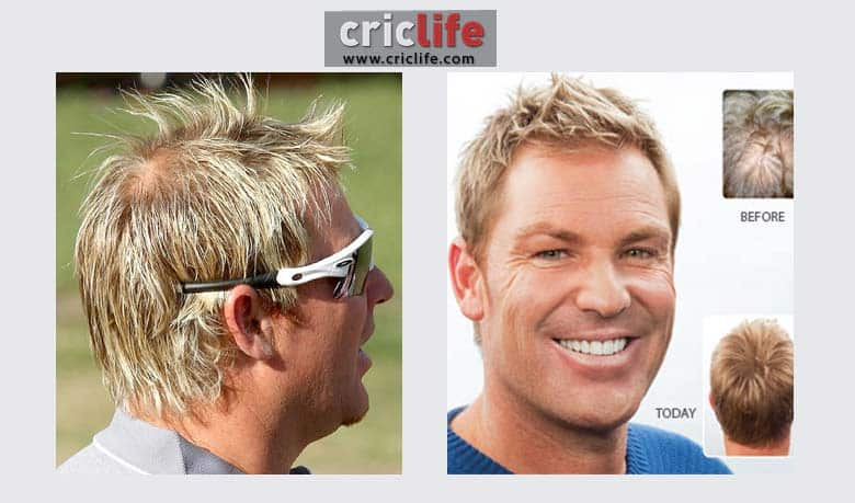 10 Cricketers Who Went For Hair Transplant Cricket Country